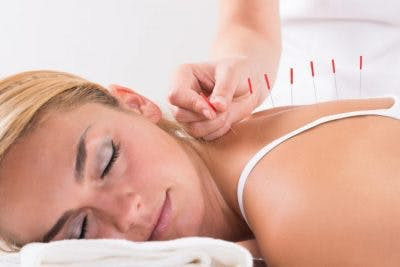 peaceful-looking woman lying down while an acupuncturist inserts needles into her back