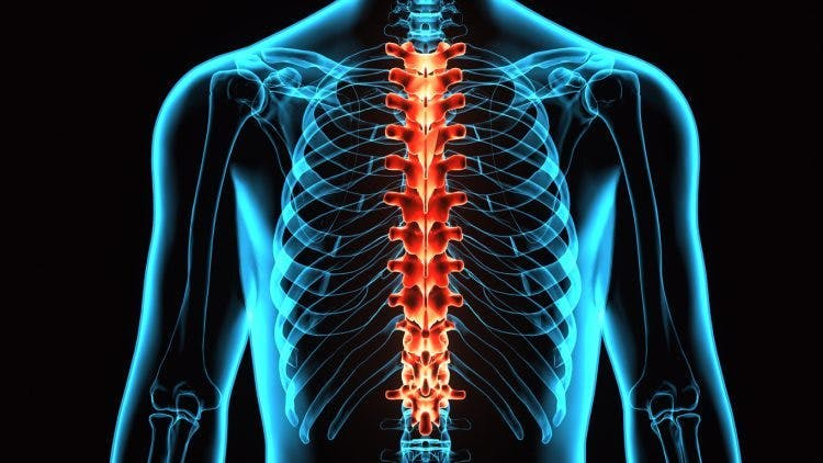 xray of thoracic spine injury