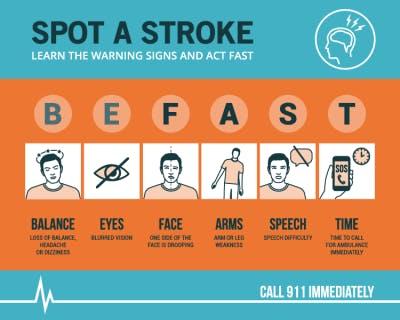 chart illustrating common mini-stroke symptoms