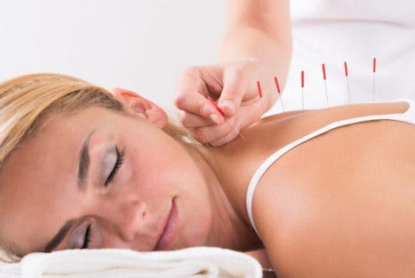 spinal cord injury patient using acupuncture for pain relief