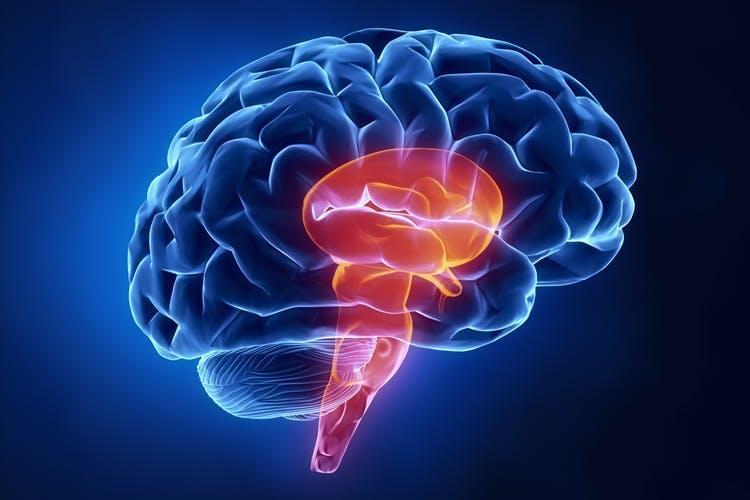 Image 3D de l'anatomie du cerveau avec un AVC du tronc cérébral en rouge