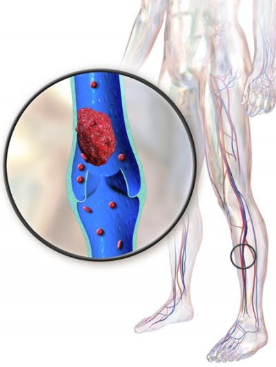 deep vein thrombosis blood clotting due to reduce mobility