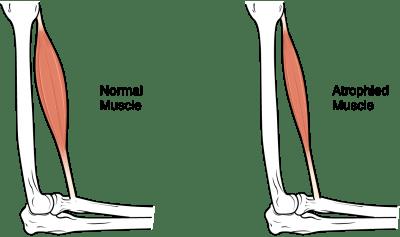 understanding complications of paraplegia like muscle atrophy