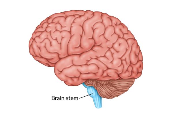medical illustration of brain highlighting the brain stem damage
