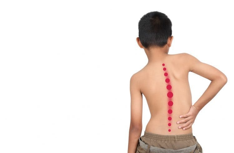 why children with cerebral palsy develop scoliosis