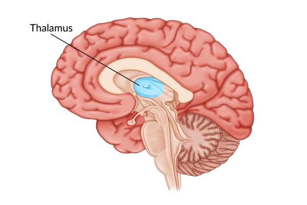 medical illustration of brain highlighting thalamus damage