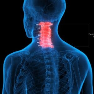 understanding c1 spinal cord injury