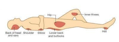 areas of the skin where pressure ulcers most commonly develop after in spinal cord injury patients