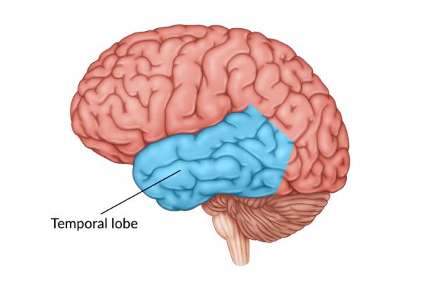 medical illustration of brain highlighting temporal lobe damage