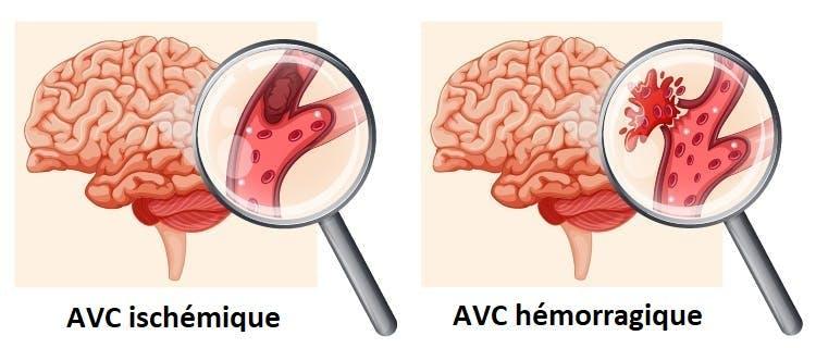 diagramme de l'AVC ischémique vs hémorragique
