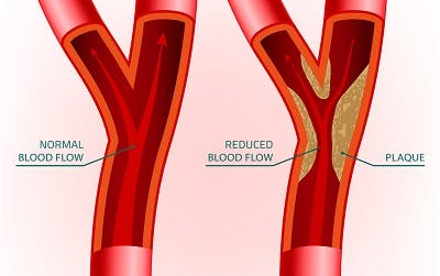 normal artery compared to artery with plaque due to atherosclerosis