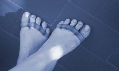 pieds avec séparateurs d'orteils pour aider à fixer les orteils recourbés