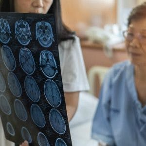 Doctor showing patient mri scan of her coup-contrecoup brain injuries