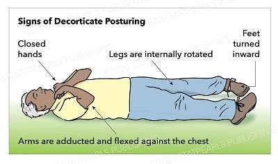 illustration of signs of decorticate posturing after brain injury