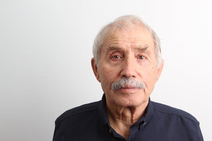 Hombre que muestra cambios emocionales después de un accidente cerebrovascular de los ganglios basales