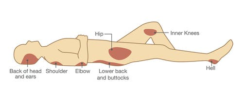 illustration of common pressure ulcer locations: back of head, shoulder, elbow, hip, inner knee, and heel