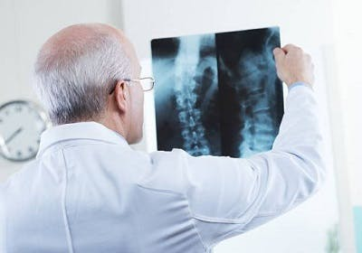 doctor looking at spinal cord xray to determine whether surgery is necessary