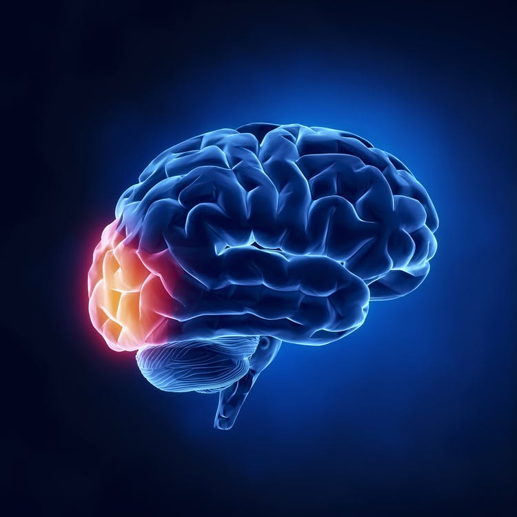 Ilustración de accidente cerebrovascular del lóbulo occipital en relación con el resto del cerebro