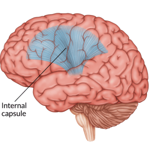 medical illustration of brain with internal capsule highlighted