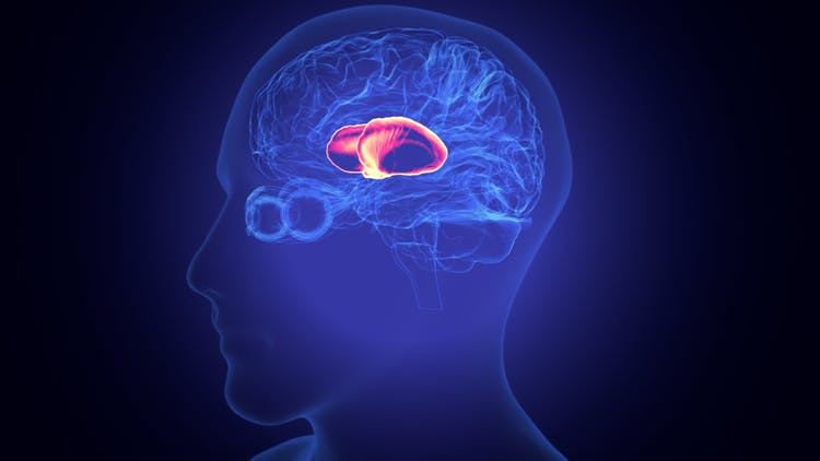 todo lo que necesita saber sobre la recuperación del accidente cerebrovascular talámico