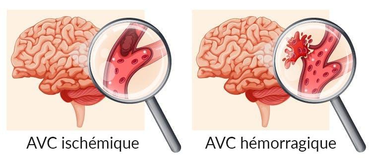 AVC ischémique vs hémorragique