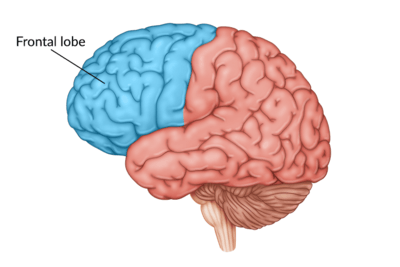 medical illustration of brain with the frontal lobe highlighted