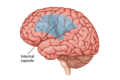 medical illustration of brain with the internal capsule highlighted