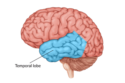 medical illustration of brain with the temporal lobe highlighted